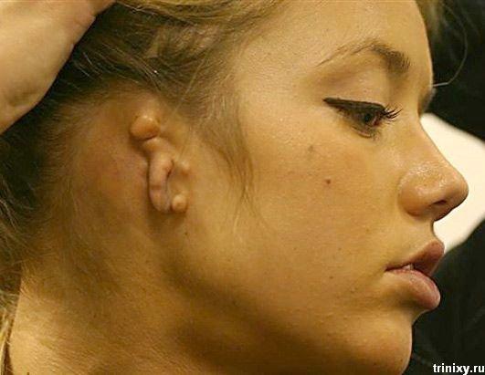 Чтобы жена патология ушной раковины у новорожденного работа математике «Создание