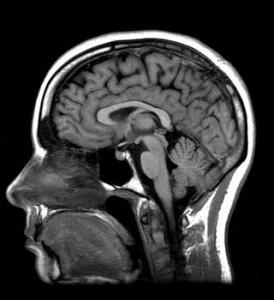 К 2030 году полем военной битвы станет мозг, уверены ученые