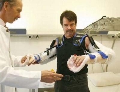 Первая в мире трансплантация обеих рук (13 фото)