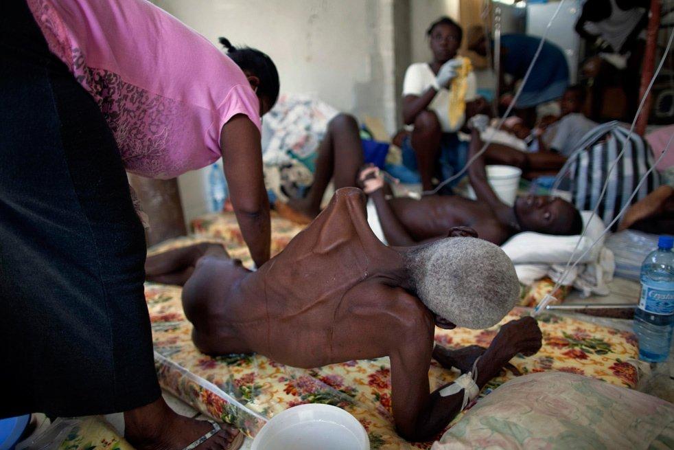 Холера фото