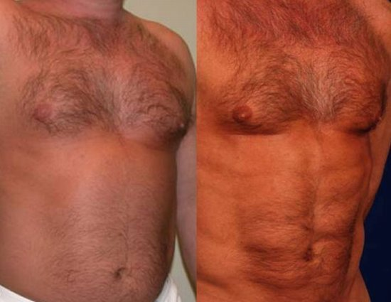 лишний жир на животе у мужчин
