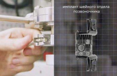 Первый российский имплант шейного позвонка напечатан на 3D-принтере